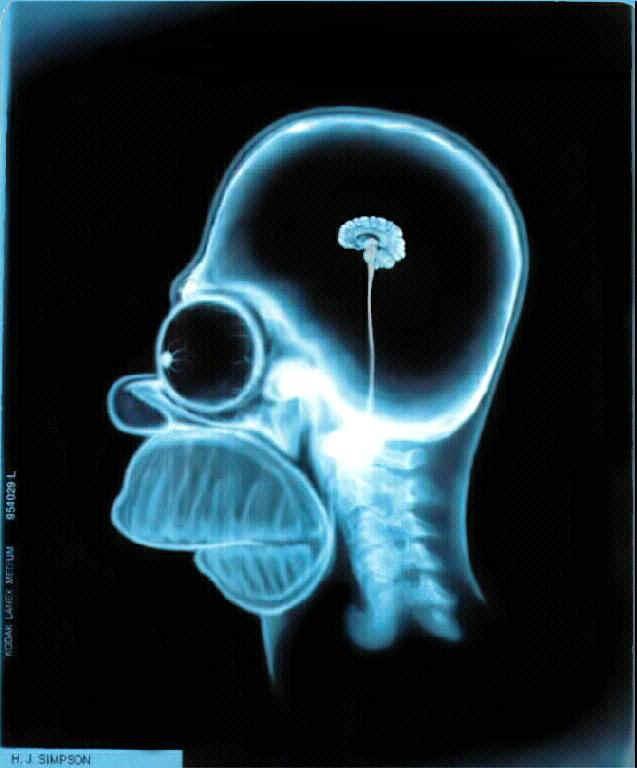Homer's Empty Head!
